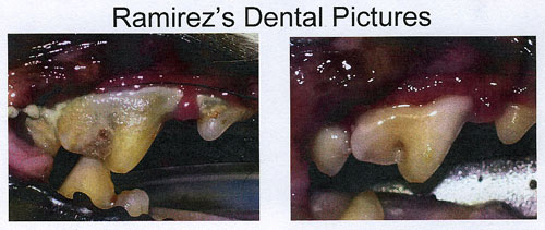 ramirez_teeth1