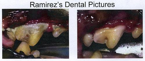 ramirez_teeth1